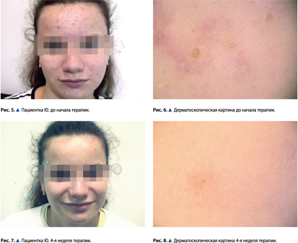 Это изображение имеет пустой атрибут alt; его имя файла - Dermatolog-20192-1-1024x835.png
